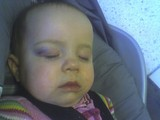 Mary asleep in her car seat. You can see a nice purple bruise over her right eye.